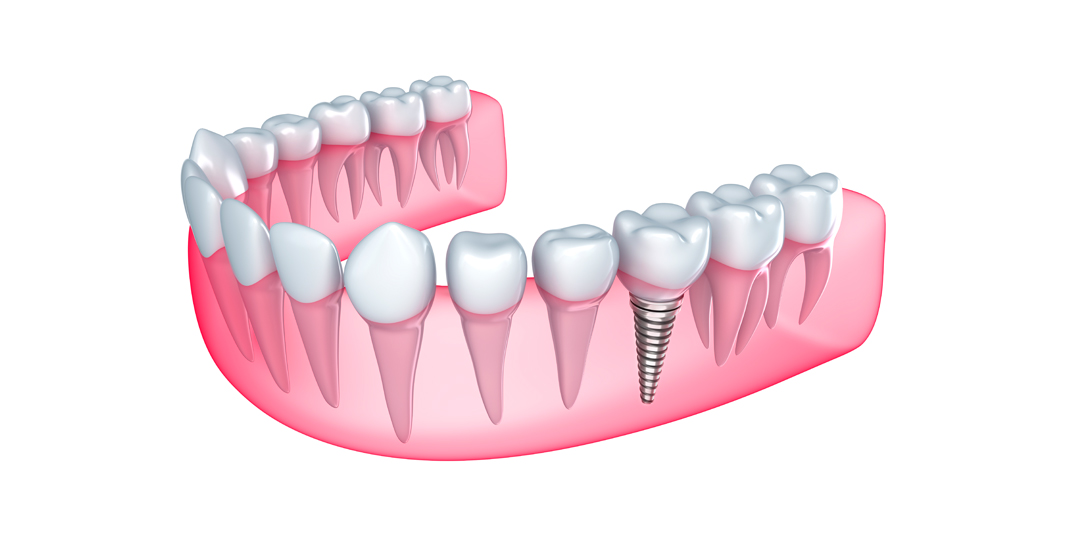 Implantes Dentales en Clinica Dental Novo Camposoto
